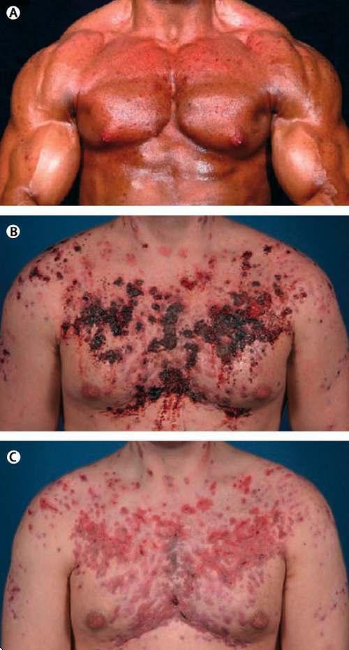 consecuencias_del_uso_de_esteroides_2008