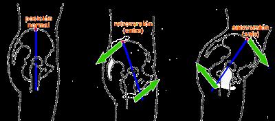 pelvis anteversión-retroversión
