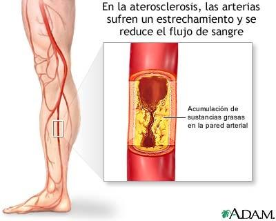 arteriosclerosis.jpg